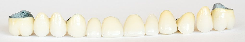 The Smile Enhancement Studio | Dental Reconstruction