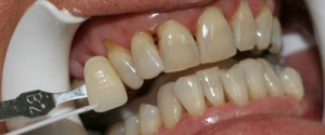 Before Zoom! Whitening